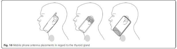 thyroid mobile phone placement