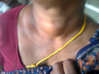 Thyroid_adenoma